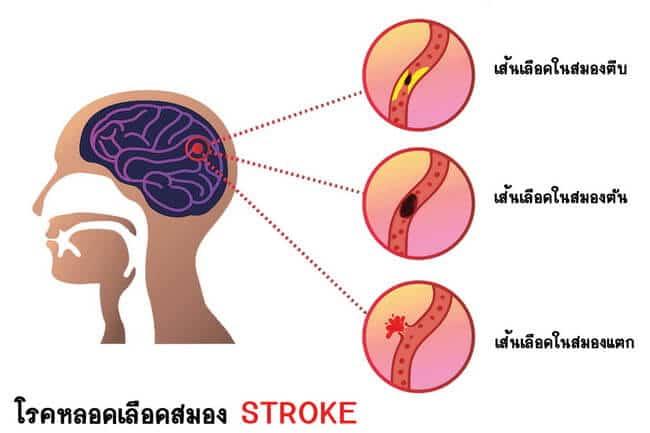 Stroke, เส้นเลือดสมองตีบ, โรคหลอดเลือดสมอง