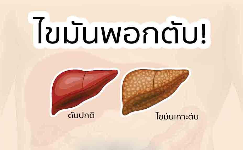เลซิติน กิฟฟารีน, อาหารเสริมบำรุงตับ กิฟฟารีน, อาหารเสริม ลดไขมันพอกตับ